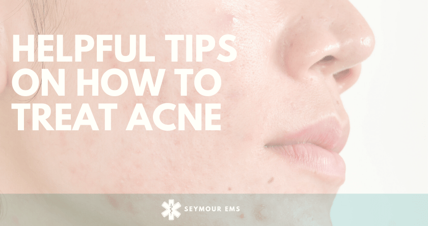 6 helpful tips on how to Treat Acne